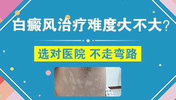 治疗四肢白癜风有哪些有效方法.jpg