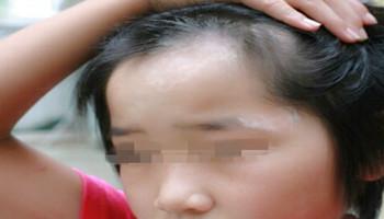 青少年白癜风治疗要用的方法