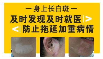 颈部长白癜风能用激光治疗吗