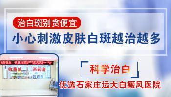 沧州专门治疗白癜风的医院哪个好