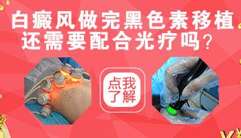 天津医院怎么治疗手上的白癜风