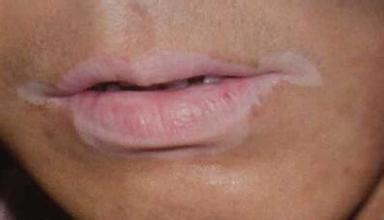 脸上大面积白癜风植皮手术怎么样