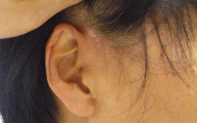 耳后有片白斑怎么检查是不是白癜风