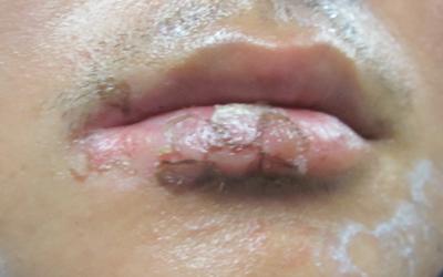嘴唇有一点白斑治疗时不用308可以吗