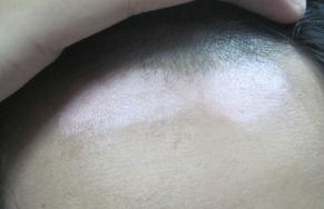 白癜风长头上抹药需要剃头发吗