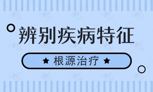 https://www.99bdf.com/zhiliao/75129.html