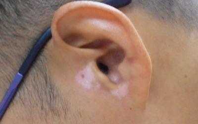 男士耳朵后边长白斑是什么原因
