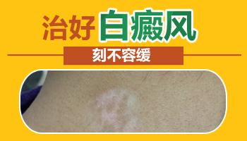 身上皮肤有白斑不及时治疗有什么后果