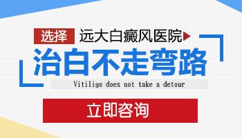 邯郸白癜风医院官方网站