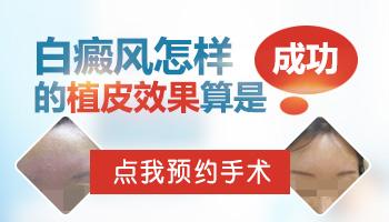 邯郸医院做白癜风种植手术能一次成功吗