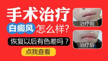 女性白癜风植皮手术后能恢复到正常肤色吗
