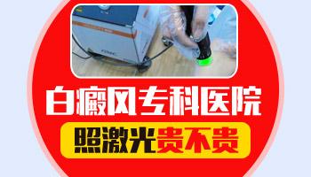 邯郸白癜风医院照激光的收费标准是什么