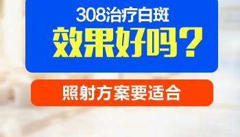 医院大型的白癜风308仪器跟自己买的308有什么区别