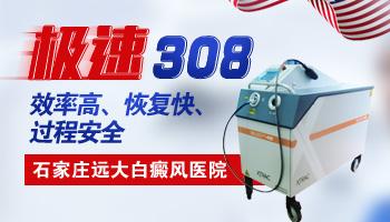 衡水白癜风医院有没有极速的308准分子激光