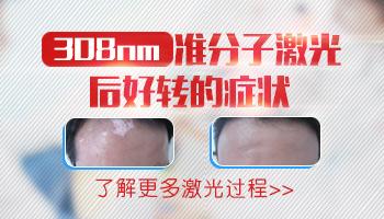 308激光治疗白斑效果怎么样照一次多少钱
