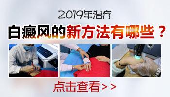 2019白癜风新治疗方法有突破吗