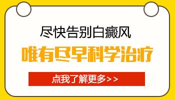 邯郸白癜风医院有没有进口308准分子激光