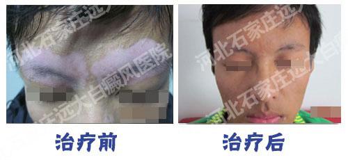 自体组织工程皮肤移植术正式落户远大白癜风医院