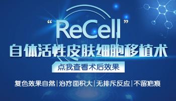 白癜风recell细胞移植和植皮哪一个好些
