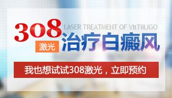 哪些医院可以照308激光治疗白斑