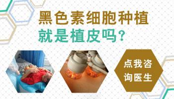 沧州哪个医院做白癜风移植手术好