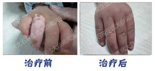 6个月宝宝腿上有白斑图片大全