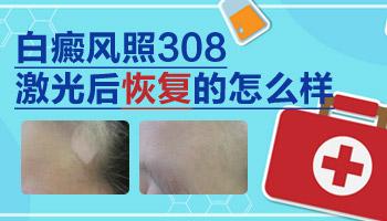 白癜风照激光可以恢复到和周围皮肤一样吗