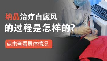 邯郸白癜风医院有没有纳晶