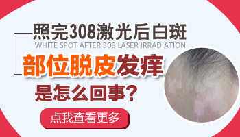 照308治疗白癜风的效果和副作用