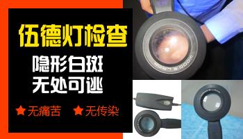 邯郸市白癜风医院有伍德灯检测吗
