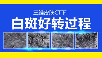 皮肤CT照白癜风图怎么看