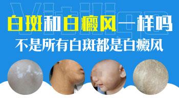 小孩子胸口有一块淡淡的白斑是什么