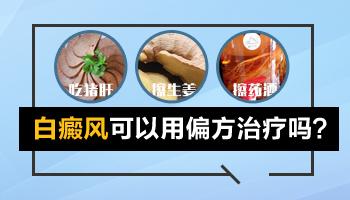 土配方能治好白癜风吗