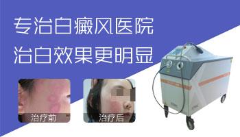 邯郸有专治白癜风医院吗