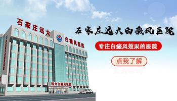 邯郸哪个医院有纳晶 白癜风做一次纳晶贵吗