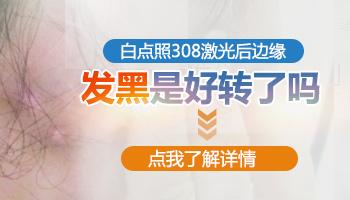 沧州哪一个医院有308准分子激光