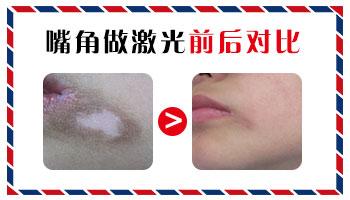 308准分子激光治疗白斑一次费用