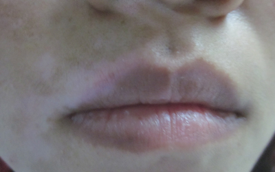 嘴唇边缘不清晰有白块