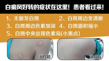 白癜风痊愈的过程 白斑好转图片