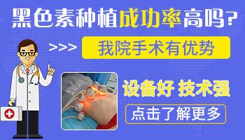 手部白癜风能不能做培植手术