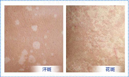 白斑早期症状的图片 普通白斑图片大全