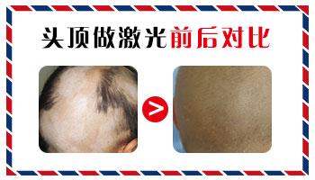 头皮得了白癜风治疗的话需要剃发吗