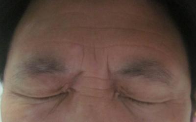 上眼皮对称白斑图片