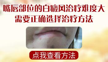 嘴唇黏膜部位的白癜风治得好吗