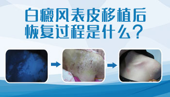 儿童嘴唇黑色素移植效果对比图