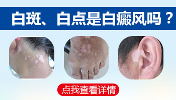 皮肤莫名的出现几个白斑点是什么