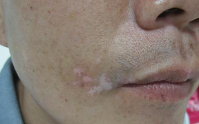 新发现的白斑长在嘴唇下方汗毛都白了