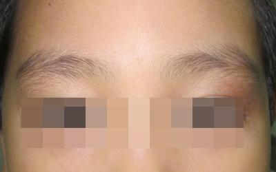 眉毛角两边上面皮肤有一块黄豆那么大白点