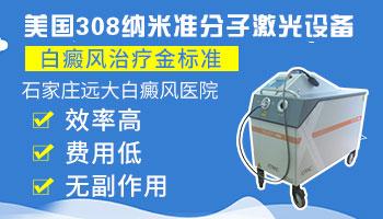家用308激光治疗仪照白癜风有效吗