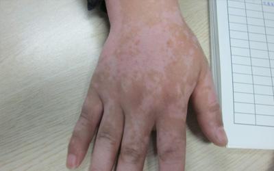 手关节发白怎么办 手指发白的图片